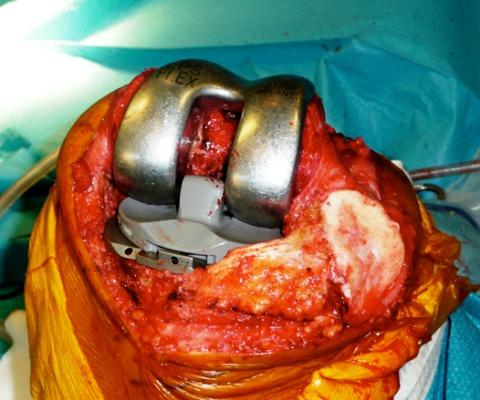 prothèse essai