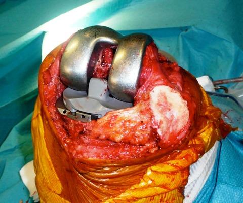 vue prothèse essai